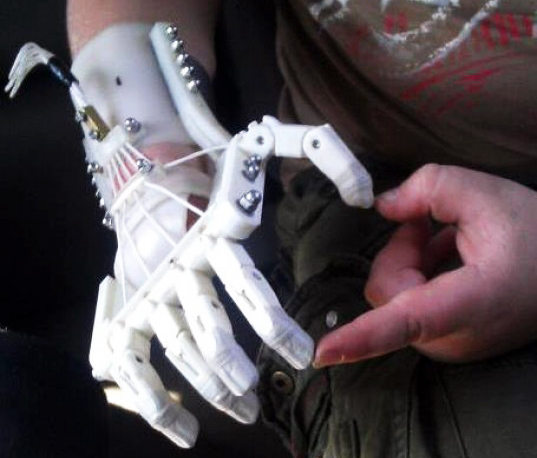 3D Printed Prosthetics, now faster, smarter, cheaper